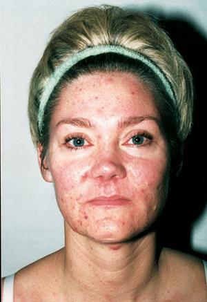 Akne, Acne Hudproblem