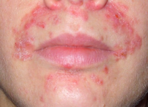 Perioral Dermatit Hudproblem