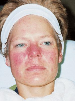 Rosacea hudproblem