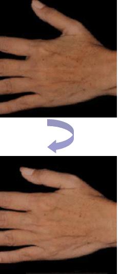pigmentering hand