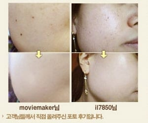bb-cream-before-and-after