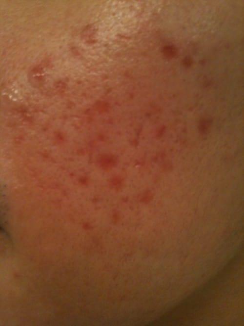 röda prickar på kinderna
