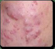 Hård finne under huden