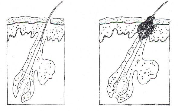 Keratosis pilaris, röda prickar på huden, finnar på huden