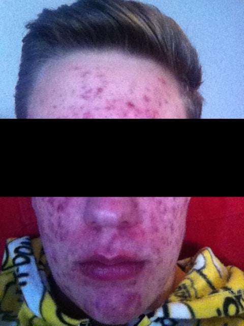 Första hjälpen mot acne & finnar!