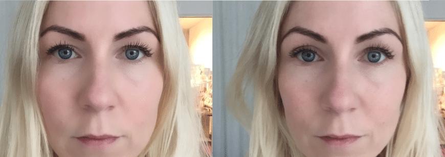 strama upp huden under ögonen