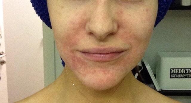 Perioral Dermatit – Före och efter