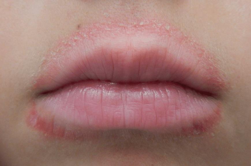 röda prickar runt munnen vuxen