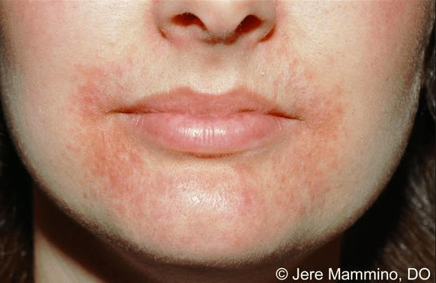 Har du Perioral Dermatit?