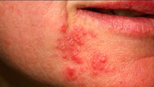 Produkttips – Perioral Dermatit