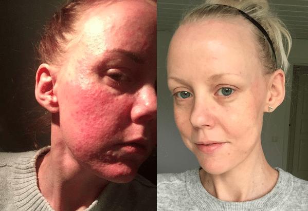 kortison mot acne