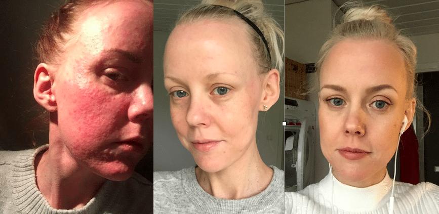 före och efter skincity