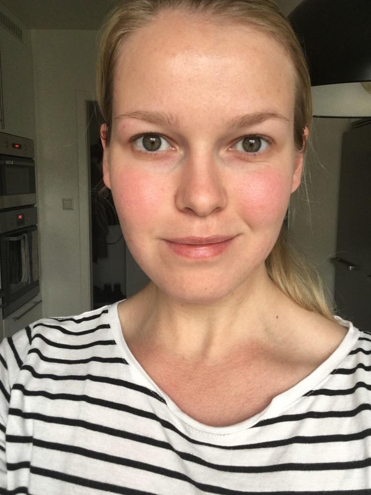 Akne efter behandling med Maria Åkerberg