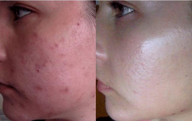 Före & Efter – Acne