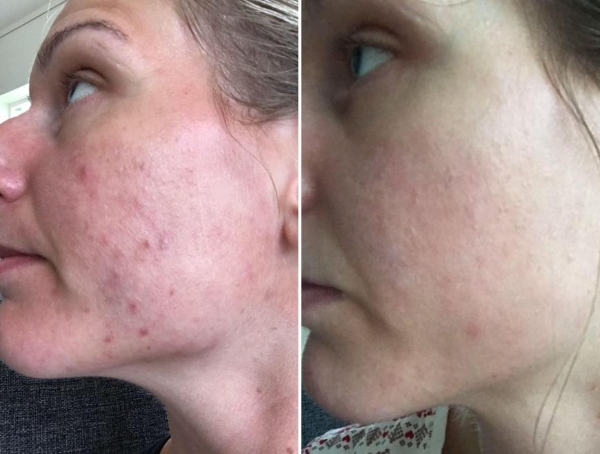 acne före och efter