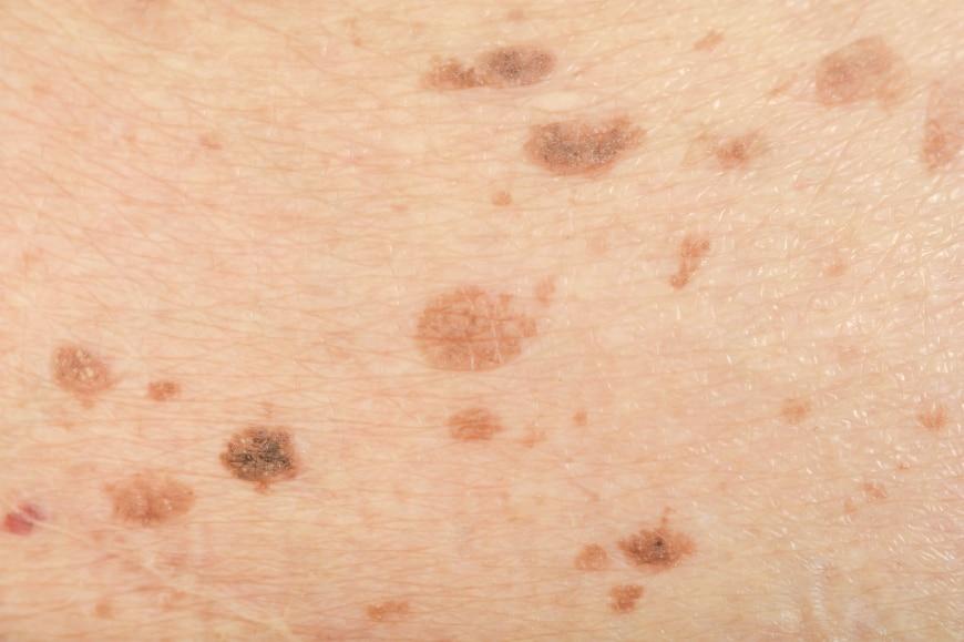 små bruna fläckar på huden