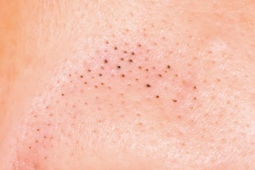 porer på hakan