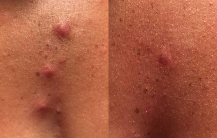 Före & Efter Purifying Spot Gel från Epionce
