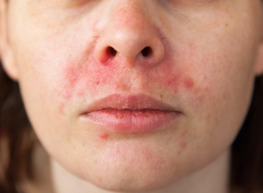 Kvinna med Perioral Dermatit