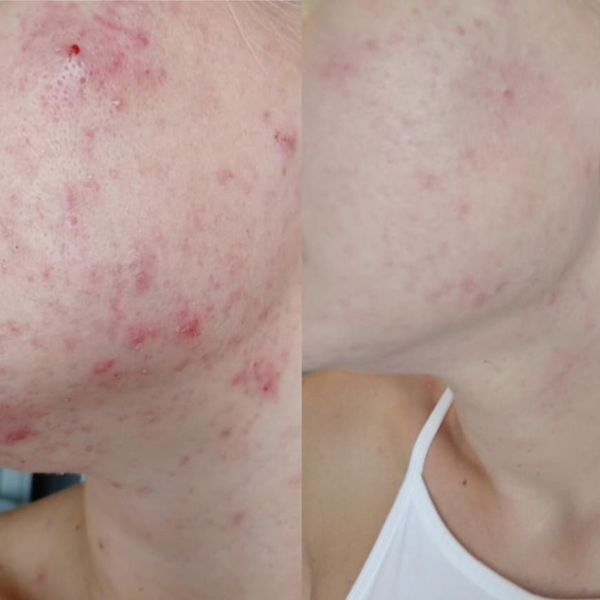 SCSC before and after