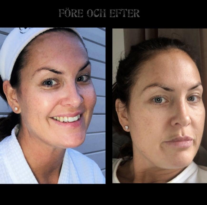 bild före och efter pigmenteringar