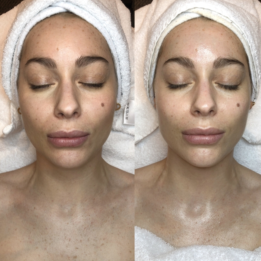 Lovisa före och efter syrabehandling med Skinceuticals