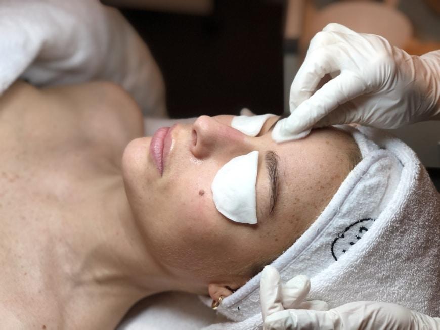 Här får Lovisa sin första AHA-behandling med SkinCeuticals som ska hjälpa henne att reducera pigmenteringarna