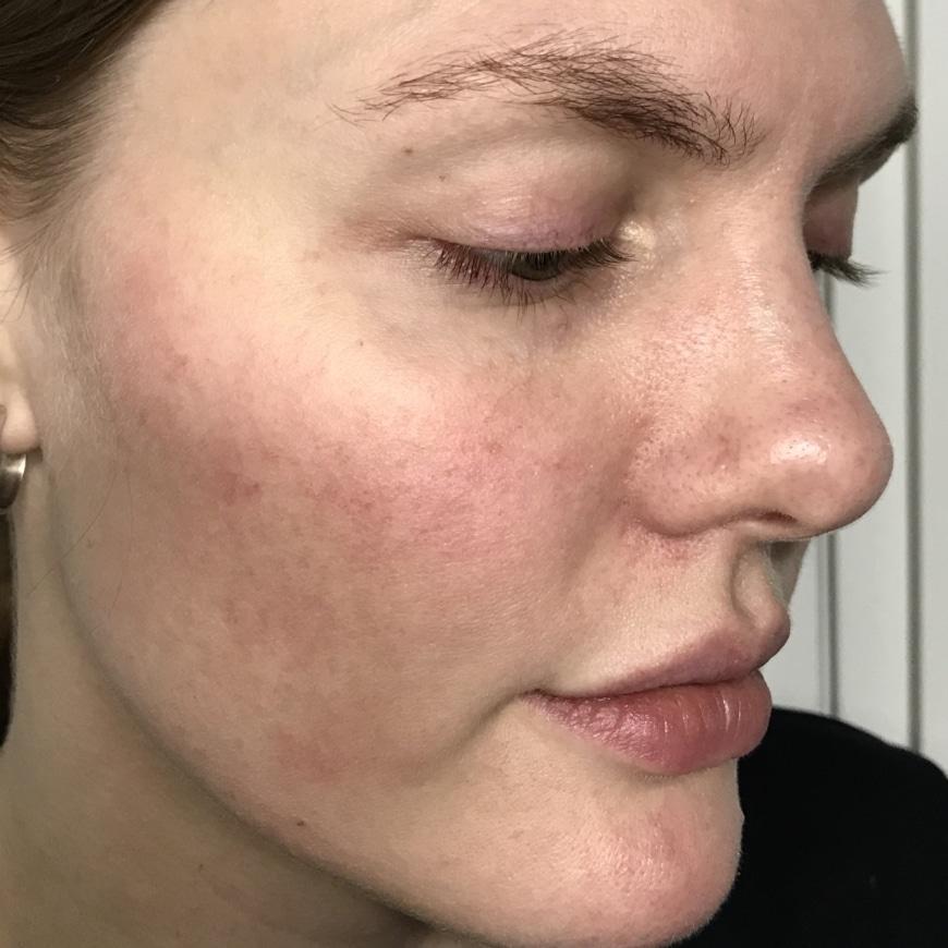 bränner i huden i ansiktet