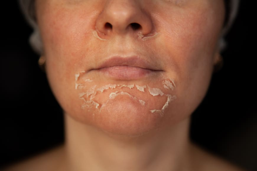 fjällande hud i ansiktet