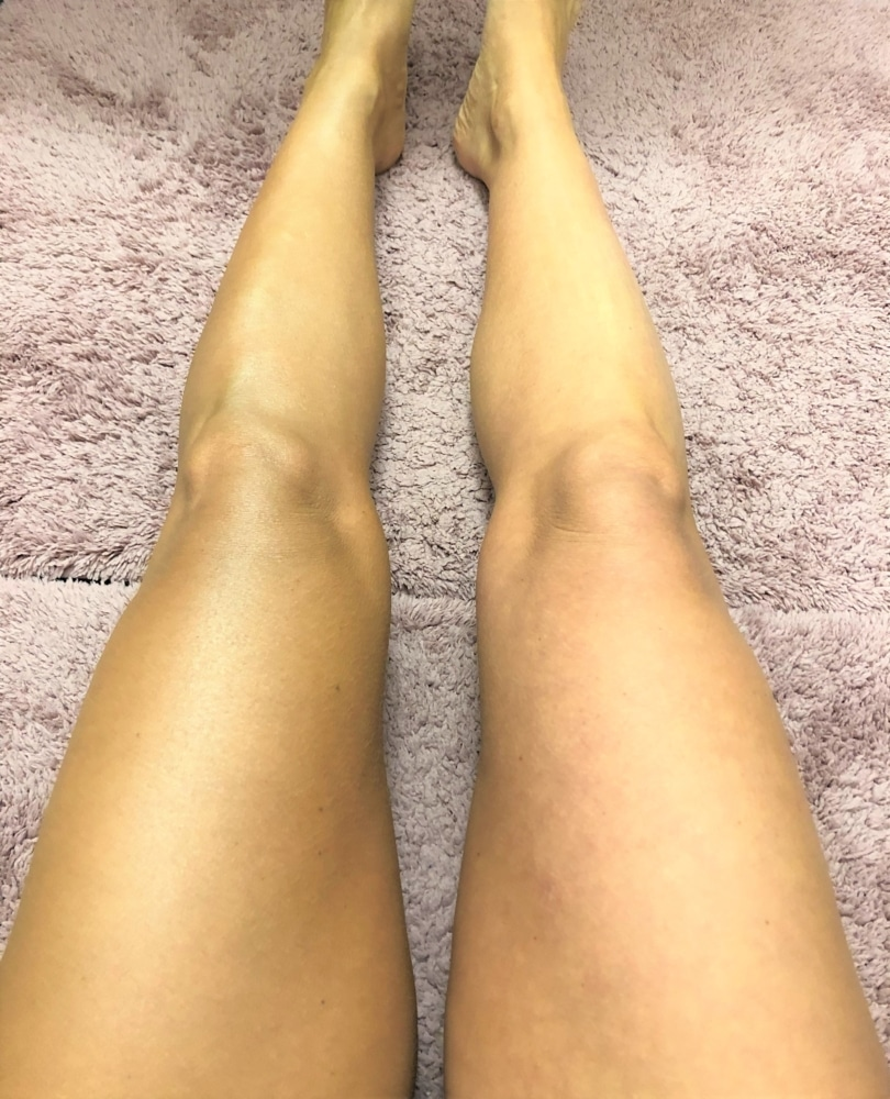 Bild på busade ben
