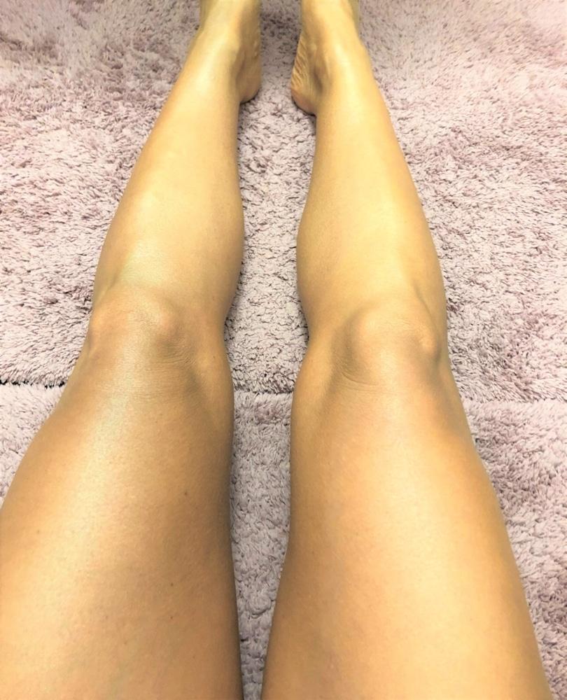 bild på ben