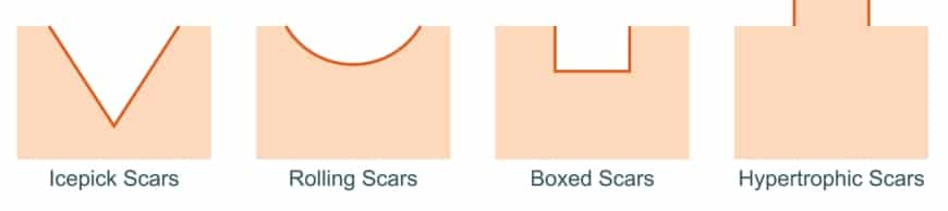 Types,Of,Acne,Scars